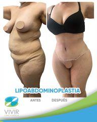 Lipoabdomindoplastia - Clínica Médica Vivir