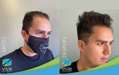 Tratamiento para el cabello - Clínica Médica Vivir