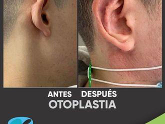 Otoplastia-799309