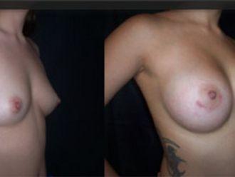 Mamoplastia de aumento-579112