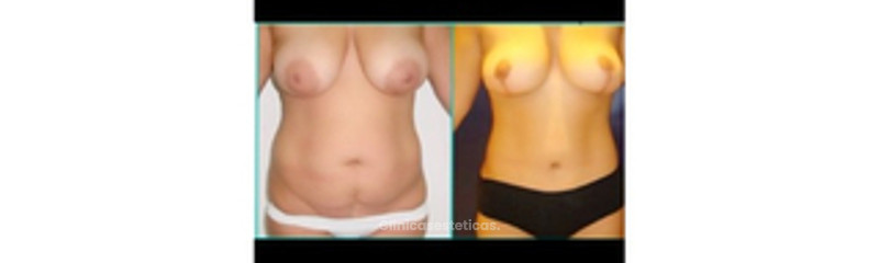 Abdominoplastia ò Lipectomia