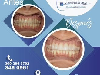 Blanqueamiento dental - 592477