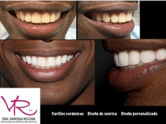 Blanqueamiento dental - 605498