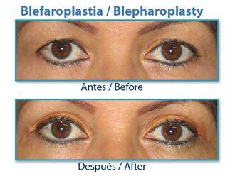 Blefaroplastia-413663