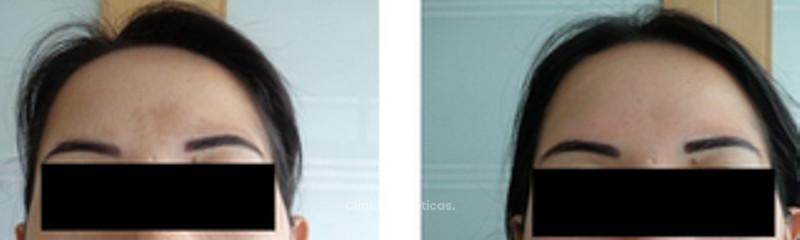 antes y después cosmelan 4