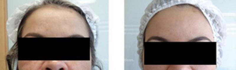 Tratamiento Cosmelan, antes y después
