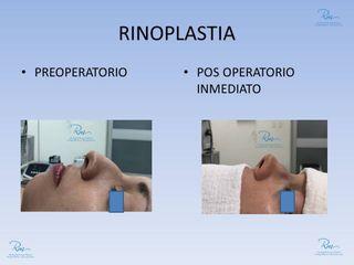 Dr. Rachid Gorron Maloof - Rinoplastia