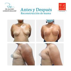 Reconstrucción mamaria - Dr. Rachid Gorron Maloof