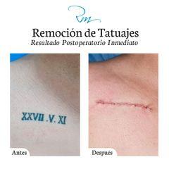 Borrar tatuajes - Dr. Rachid Gorron Maloof