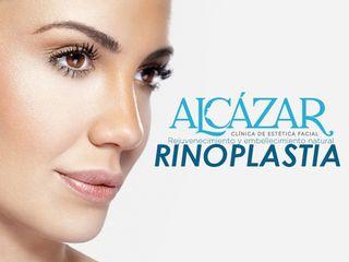 Rinopalstia Clínica Alcázar