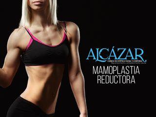 Mamoplastia de reducción Clínica Alcázar.