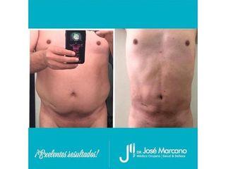 Abdominoplastia - Dr. Jose Alejandro Marcano Delgado