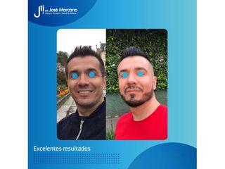 Bótox - Dr. Jose Alejandro Marcano Delgado