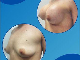 Mamoplastia de aumento - 791584