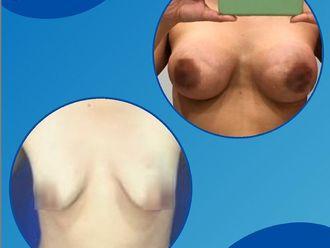 Mamoplastia de aumento - 791585
