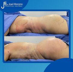 Liposucción - Dr. Jose Alejandro Marcano Delgado