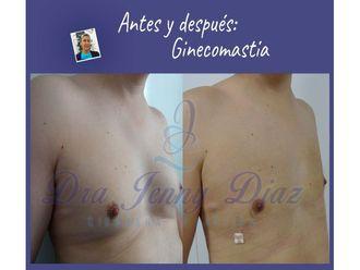 Ginecomastia-739235