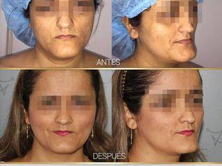 Antes y despues de mentoplastia