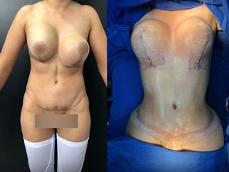 Mamoplastia de aumento - 646220
