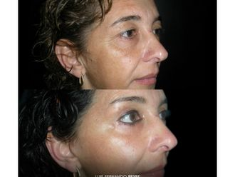 Rejuvenecimiento facial - 646223