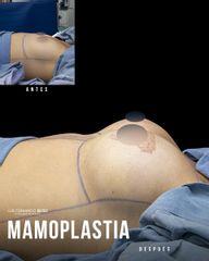 Mamoplastia de aumento - Dr. Luis Fernando Reyes