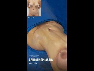 Abdominoplastia - Dr. Luis Fernando Reyes