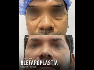 Blefaroplastia - 740371