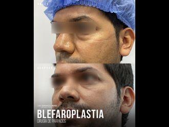 Blefaroplastia - 740372