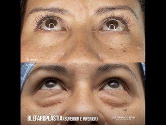 Blefaroplastia - 740374