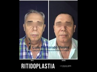 Rinoplastia-740375