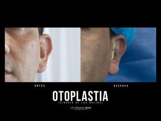 Otoplastia-740376