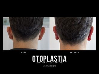 Otoplastia-740380