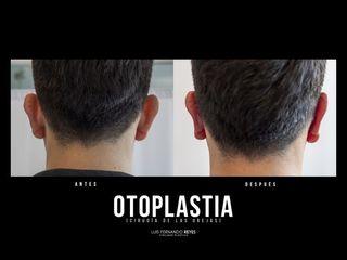 Otoplastia - Dr. Luis Fernando Reyes