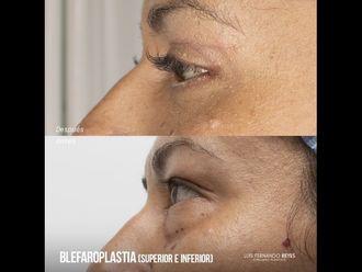 Blefaroplastia - 740381