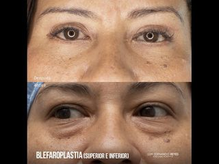 Blefaroplastia - Dr. Luis Fernando Reyes