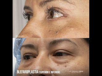 Blefaroplastia - 740386