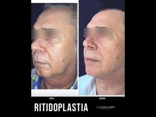 Liposucción de papada - Dr. Luis Fernando Reyes