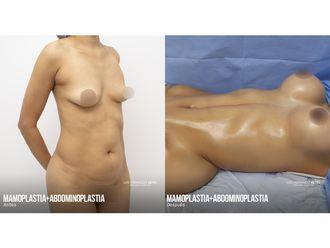 Abdominoplastia-740767