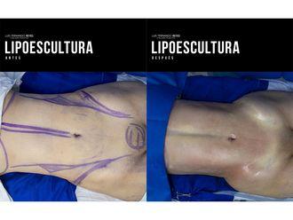 Liposucción-740769
