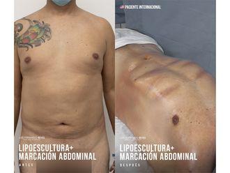 Liposucción-740774