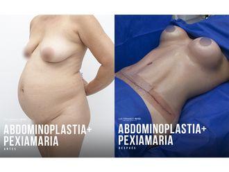 Abdominoplastia-740775