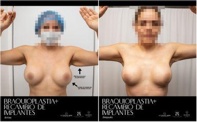 Recambio implantes mamarios - Dr. Luis Fernando Reyes