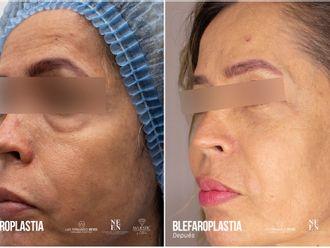 Blefaroplastia-793375