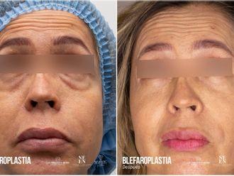 Blefaroplastia-793378