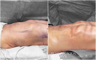 Lipomarcación Abdominal - Dr. Luis Fernando Reyes
