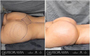 Gluteoplastia - Dr. Luis Fernando Reyes