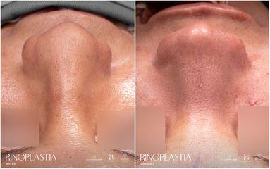Rinoplastia - Dr. Luis Fernando Reyes