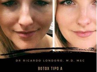 Bótox - 636671