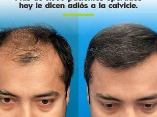 Antes y despues de tratamiento capilar