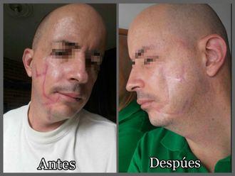Cicatrices-623736